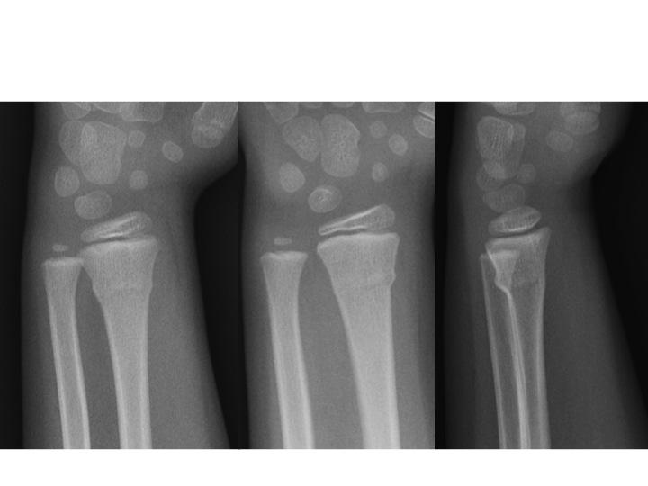 Torus Fracture (a.k.a. Buckle Fracture) | DAILYEM