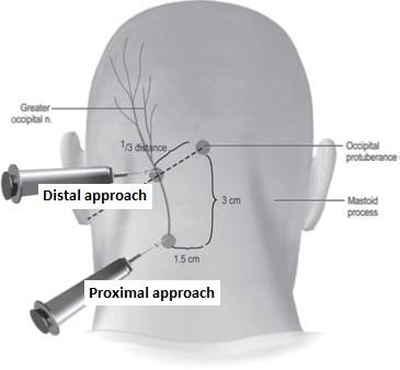 USRA  Greater Occipital Nerve Block
