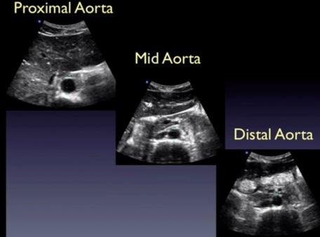 aortaus
