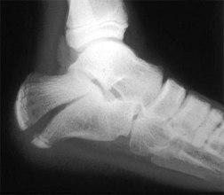 calcaneal_fracture
