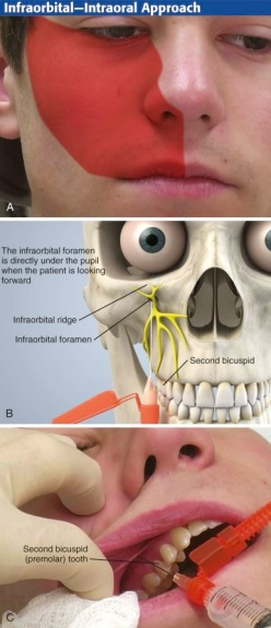 Infraorbital 1