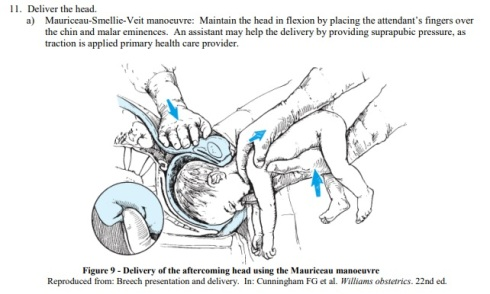 breech visual